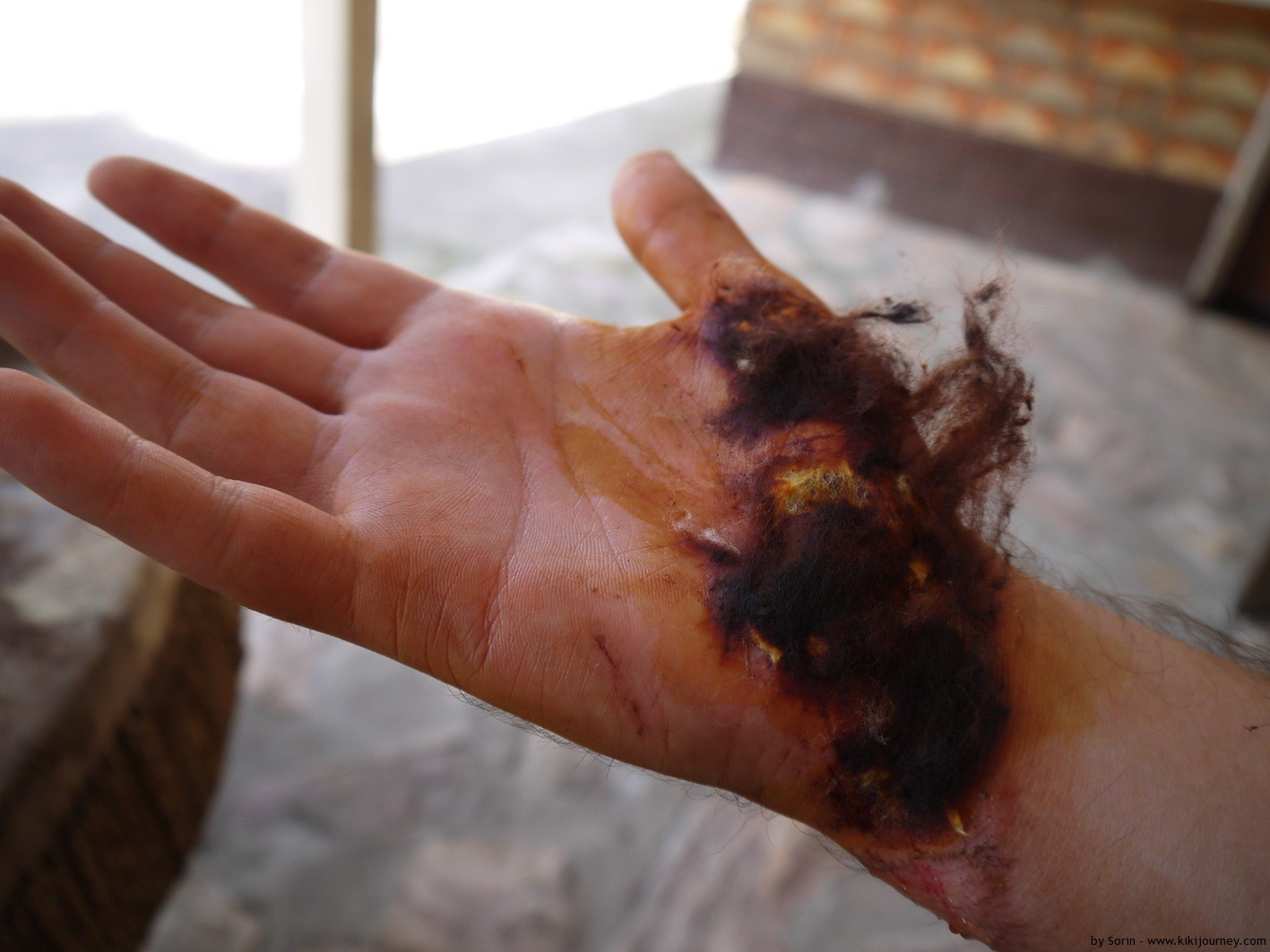 Pictures of Bad Wounds http://www.kikijourney.com/first-boda-boda-crash-and-last/