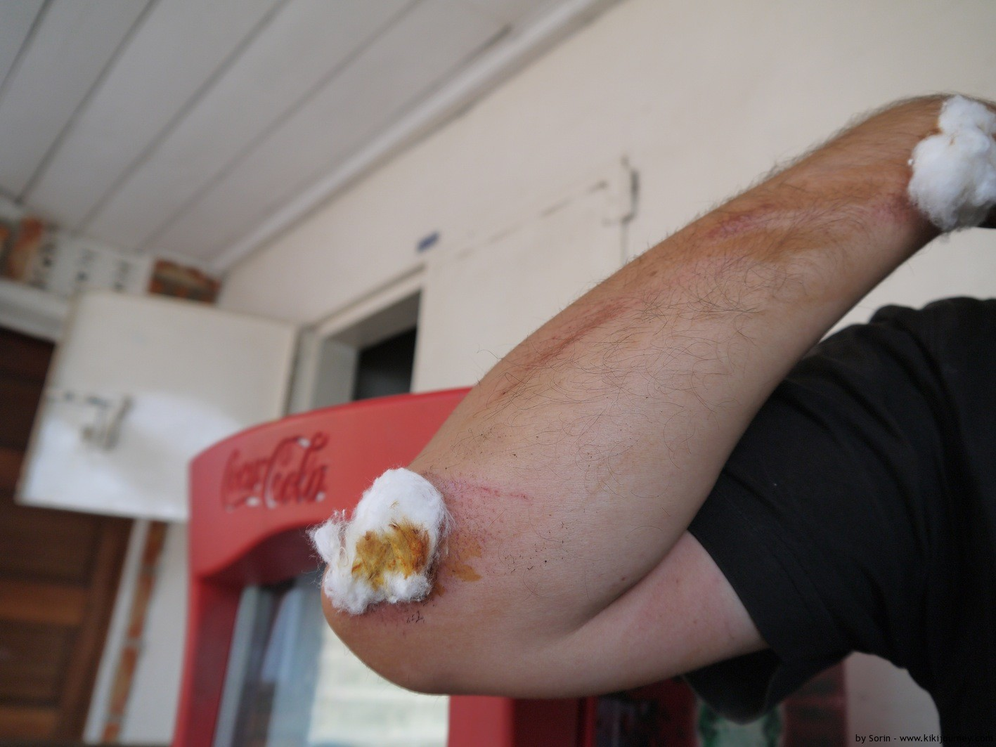 wounded arm